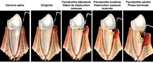 parodontite_L